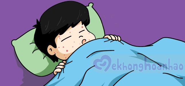 Chẩn đoán và điều trị sốt xuất huyết dengue và sốt dengue