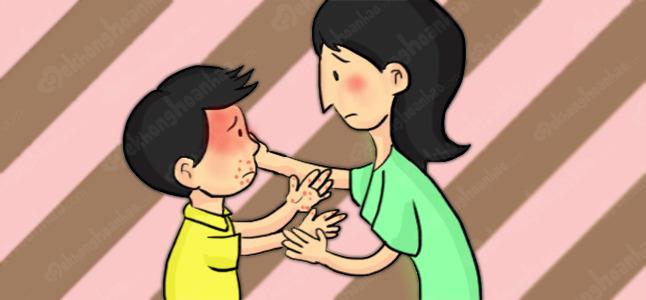 Điều trị và phòng ngừa bệnh tay chân miệng ở trẻ em