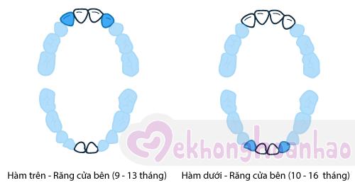 tre-moc-rang-sua-the-nao-hinh-anh3