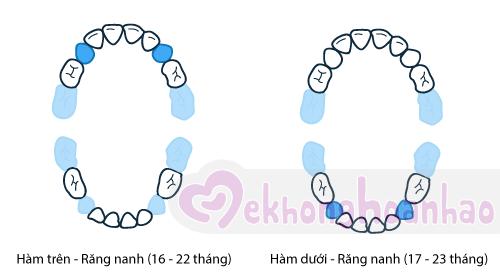 tre-moc-rang-sua-the-nao-hinh-anh5